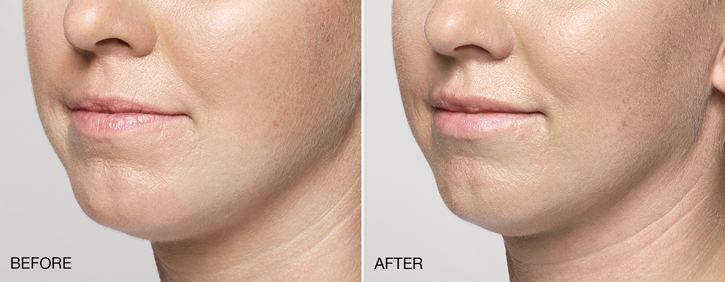 Dr Dennis Dass, MD Restylane® Silk Before and After 3
