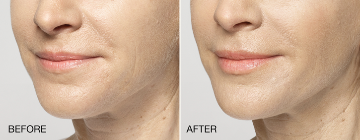 Dr Dennis Dass, MD Restylane® Silk Before and After 4