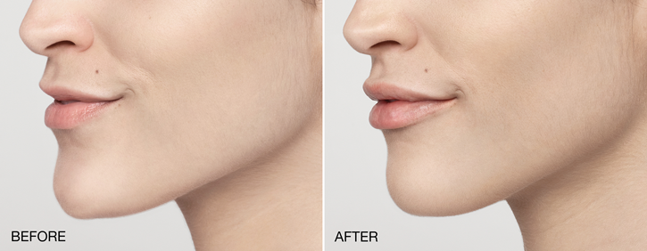 Dr Dennis Dass, MD Restylane® Beverly Hills Before and After