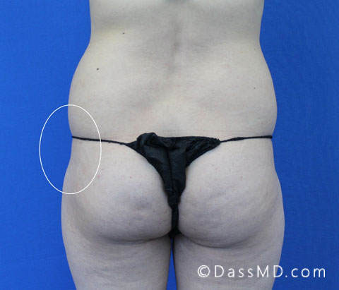 Treatment Of Hip Dips With Fat Transfer