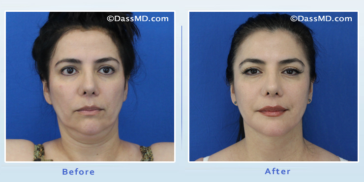 Beverly Hills Chin Liposuction Results Before And After Photos