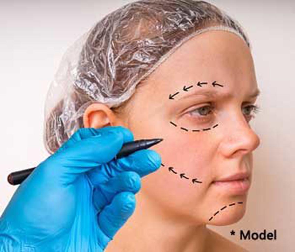 Face Botox treatment, Dennis Dass, MD