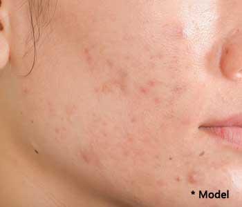 Ways of treating acne