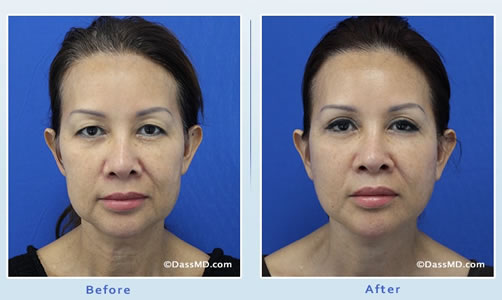 Explains anti-aging facelift treatment vs neck lift