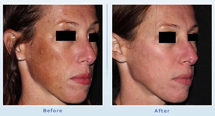 PicoFacial treatment before and after 2