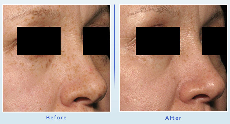 Brown spot treatment results before and after 1