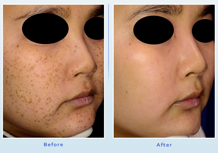 Brown spot treatment results before and after 2