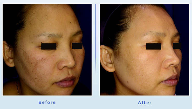 Brown spot treatment results before and after 3