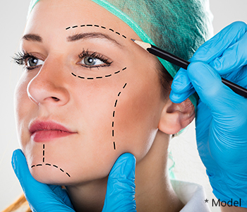 Which patients are proper candidates for facelift surgery