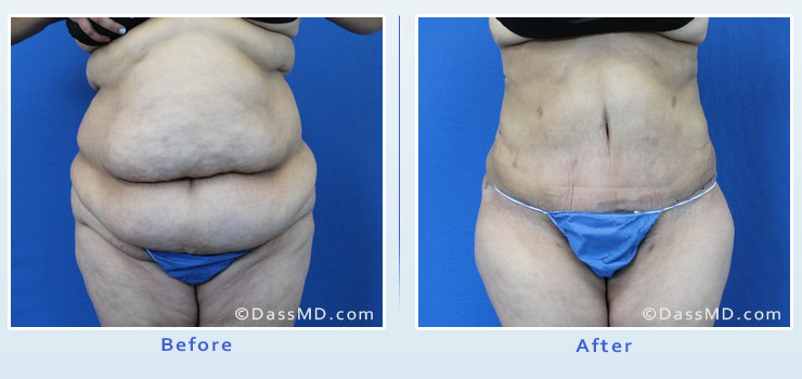 Beverly Hills extreme transformation case 1 before after image 1