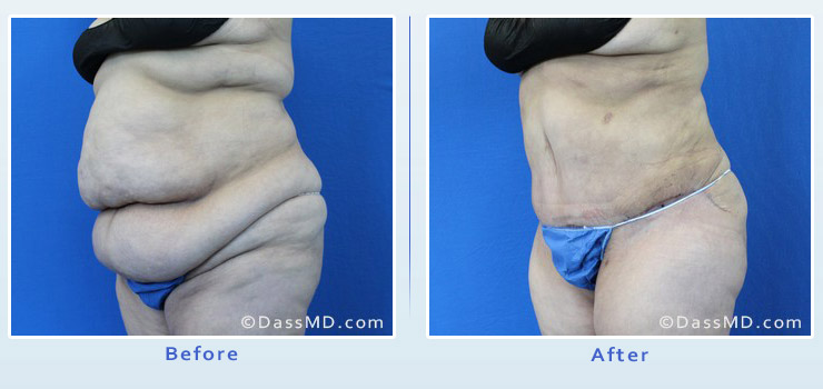 Beverly Hills extreme transformation case 1 before after image 2