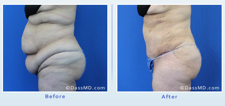 Beverly Hills extreme transformation case 1 before after image 3