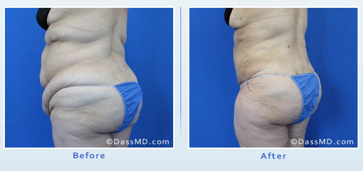 Beverly Hills extreme transformation case 1 before after image 4
