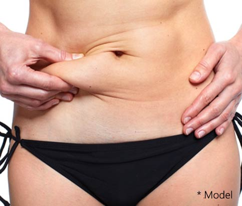 Plastic surgeon in Beverly Hills, CA describes the process of Tummy Tuck surgery