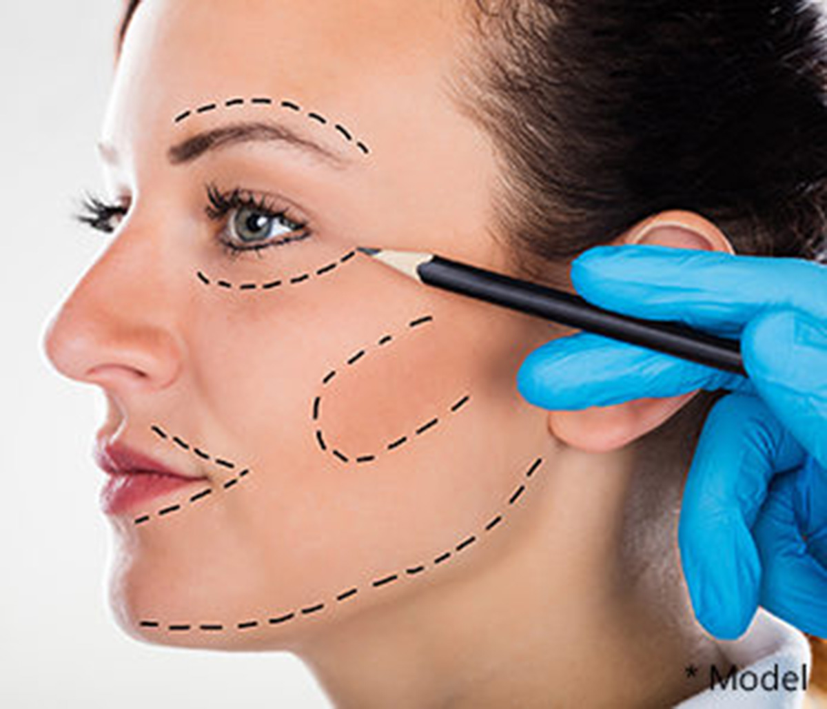 Dr. Dass describes facelift without surgery