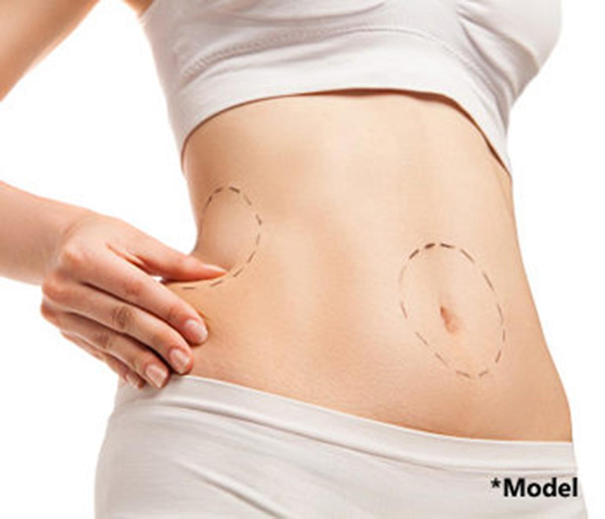 Tummy tuck is a versatile plastic surgery procedure to restore slim contours
