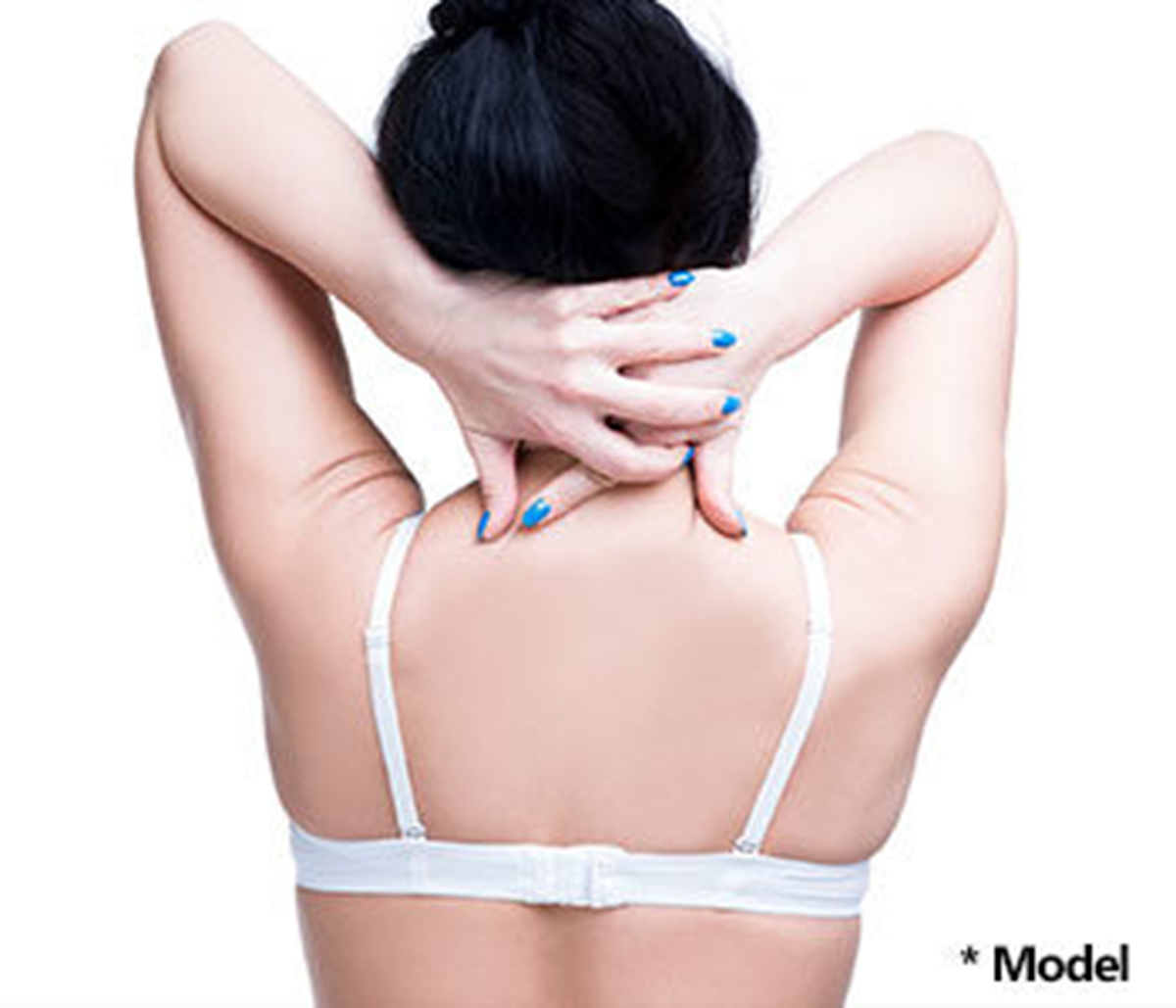 Liposuction of the back bra rolls in Beverly Hills, by Dr. Dennis Dass