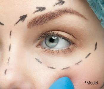 Eyelid surgery from surgeon in Beverly Hills