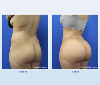 Brazilian butt lift surgery helps patients achieve a shapelier body with curves