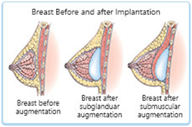 Breast Augmentation diagramtic explanataion 1