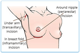 Breast Augmentation diagramtic explanataion 3