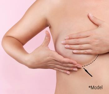 Breast augmentation from Board-certified surgeon is in Beverly Hills