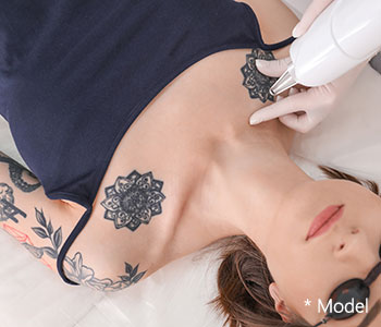 Cost and benefits of the laser tattoo removal procedure in Beverly Hills