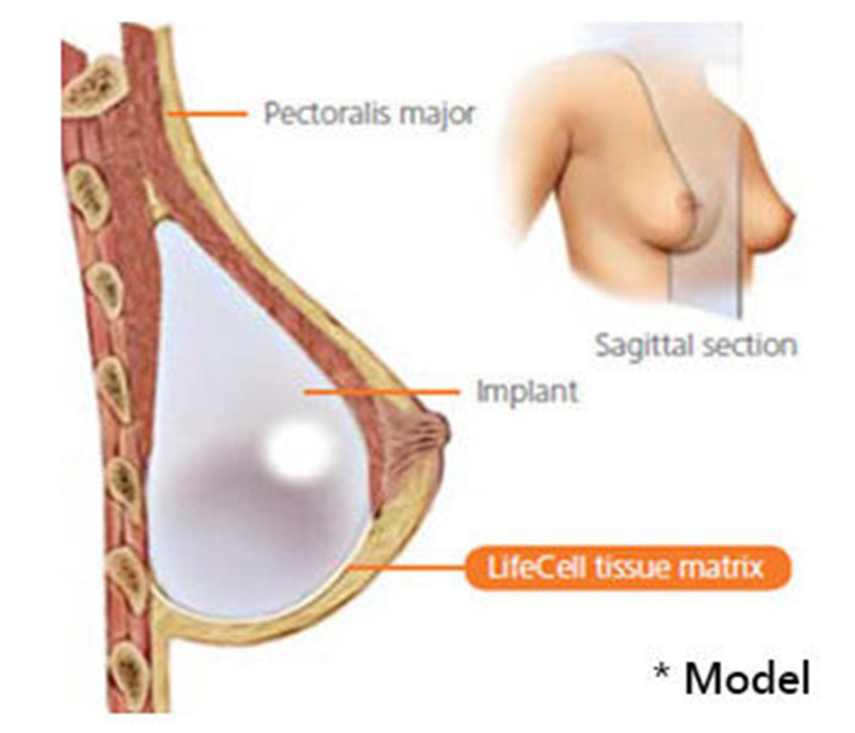 Strattice breast, Dennis Dass, MD in Beverly Hills