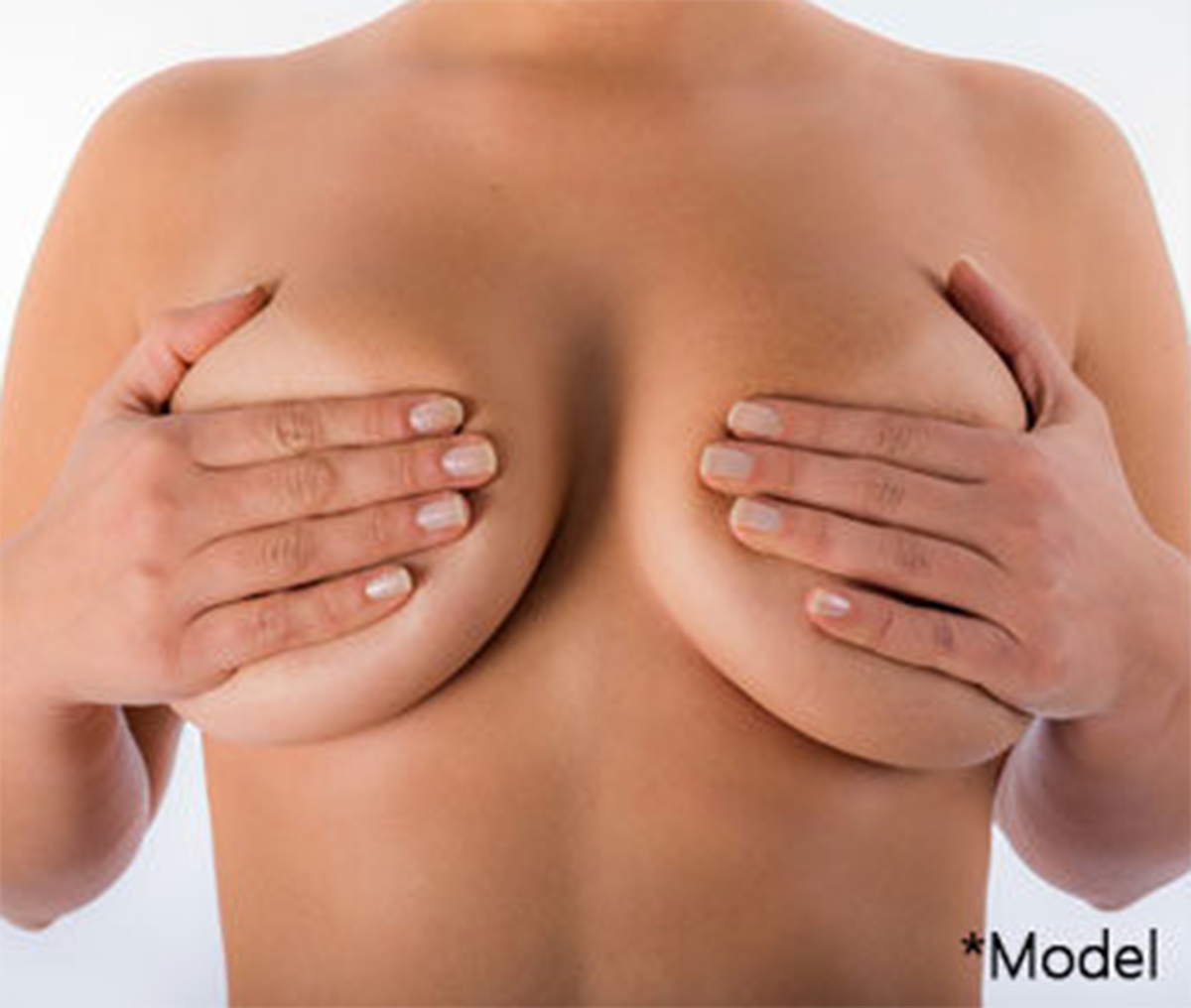 High profile breast implants Los Angeles Beverly Hills