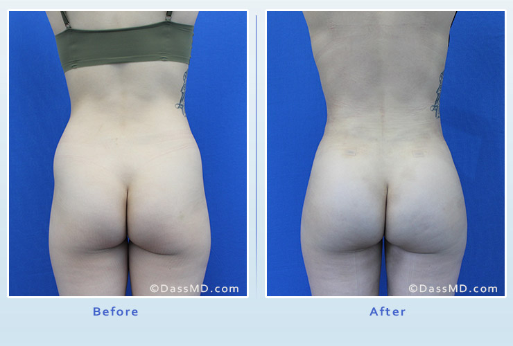 Fat transfer buttock augmentation for thin women case 2 before after image 1