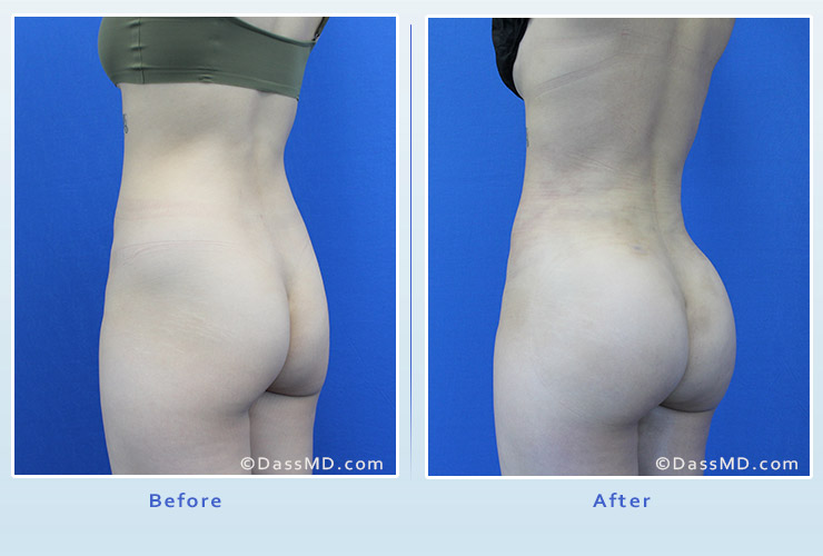 Fat transfer buttock augmentation for thin women case 2 before after image 2
