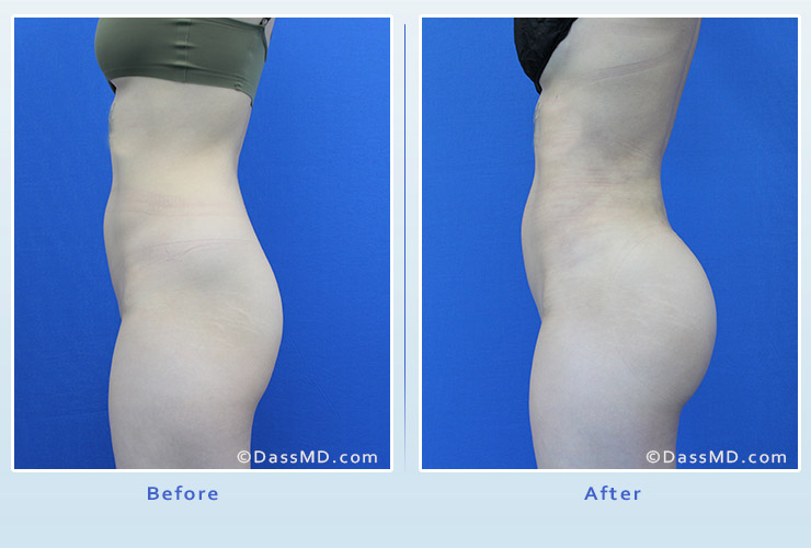 Fat transfer buttock augmentation for thin women case 2 before after image 3
