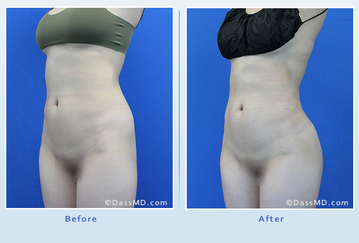 Fat transfer buttock augmentation for thin women case 2 before after image 4