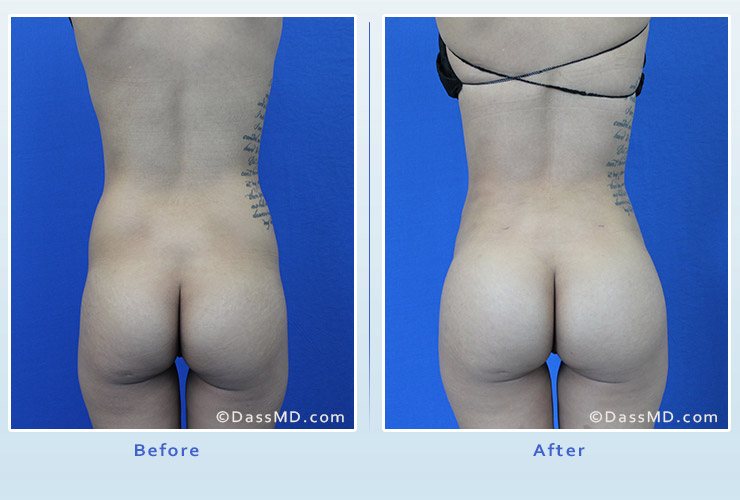 Fat transfer buttock augmentation for thin women case 1 before after image 1