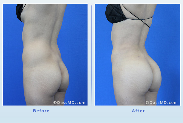 Fat transfer buttock augmentation for thin women case 1 before after image 2