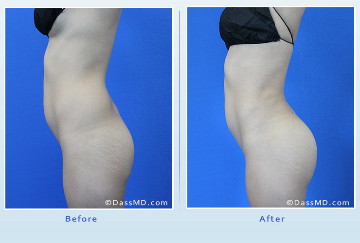 Fat transfer buttock augmentation for thin women case 1 before after image 3