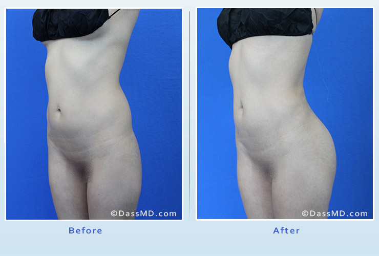 Fat transfer buttock augmentation for thin women case 1 before after image 4