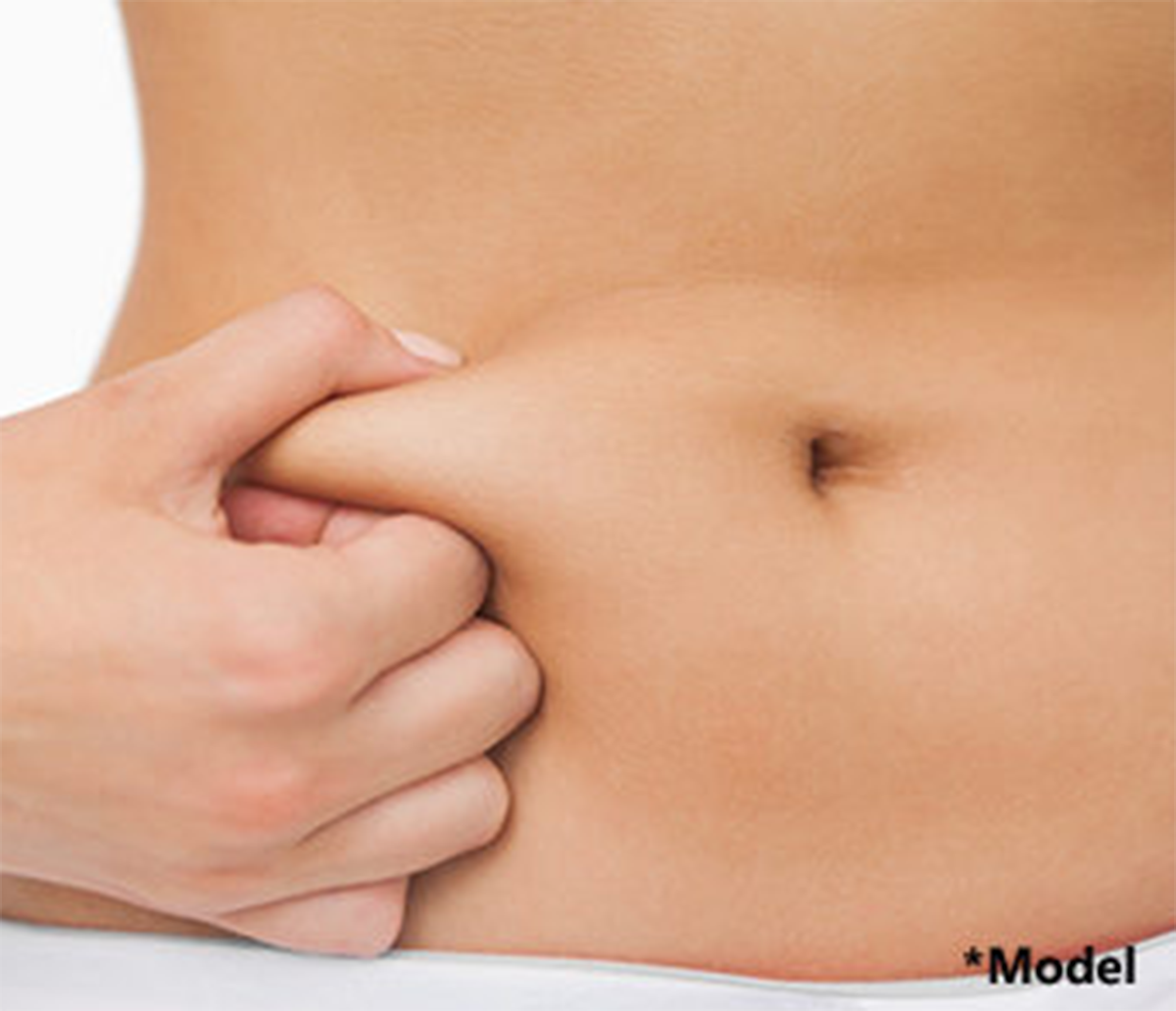 Liposuction of the flanks in Beverly Hills, by Dr. Dennis Dass