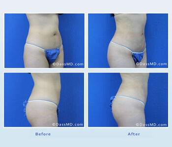 Dr. Dennis Dass in Beverly Hills explains recovery and results for liposuction surgery