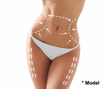 Beverly Hills, CA physician Dr. Dennis Dass explains results of liposuction surgery