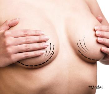 Breast Augmentation under the muscle from Board-certified surgeon is in Beverly Hills