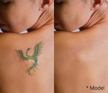 Easier tattoo coverups with the PicoSure tattoo removal near Los Angeles
