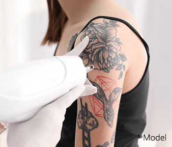 Say goodbye to ink with tattoo removal near Beverly Hills