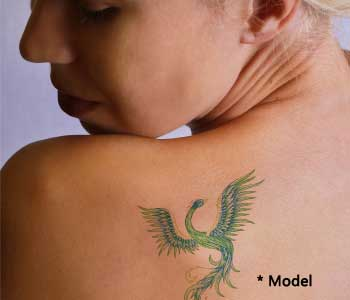 Successful tattoo removal from Beverly Hills area Doctor