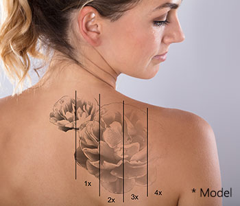 Is tattoo removal successful in Beverly Hills