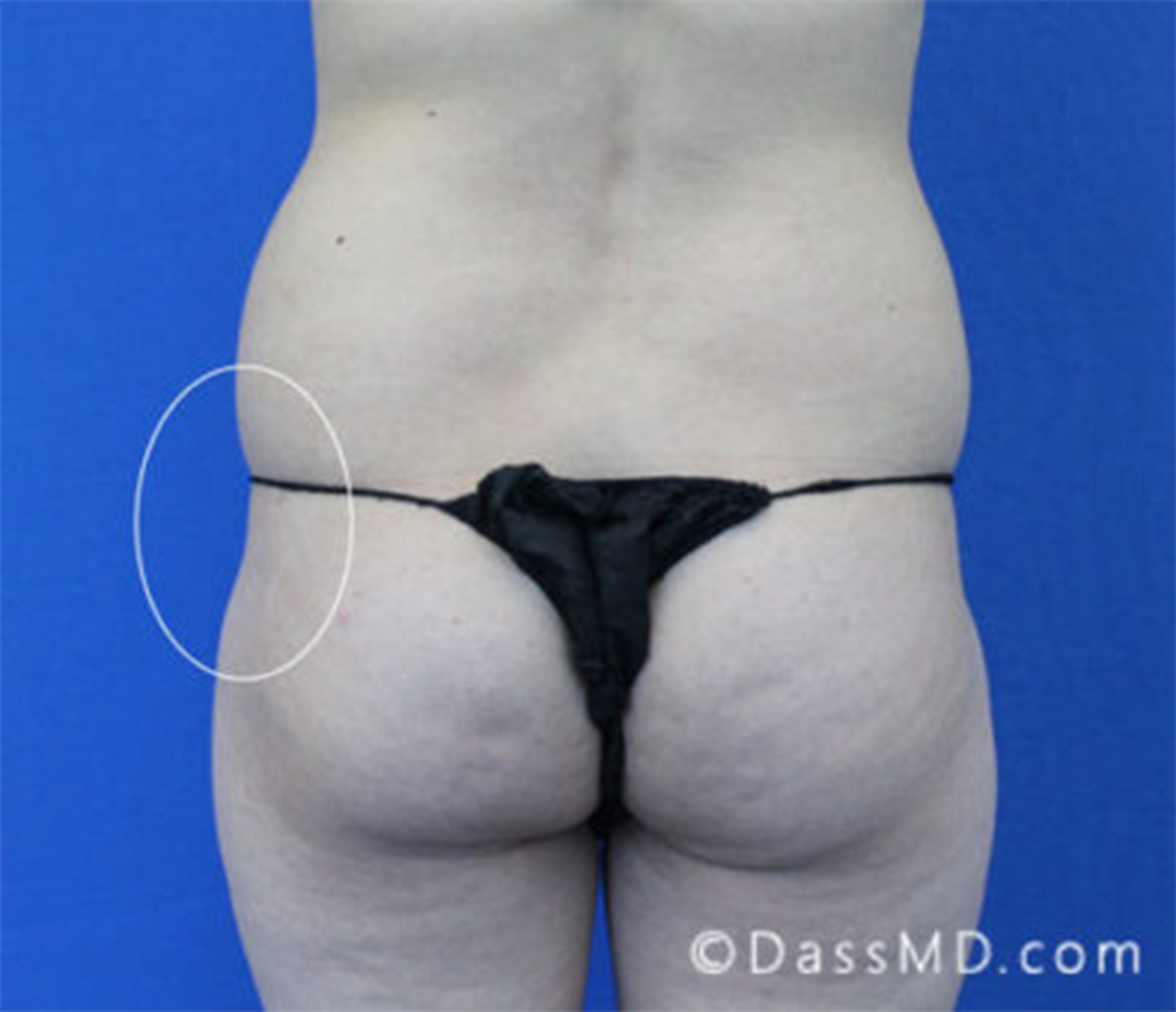 Treatment of hip dips with fat transfer from Dr. Dass in Los Angeles, CA