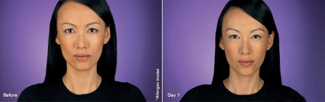 Botox before after image 1