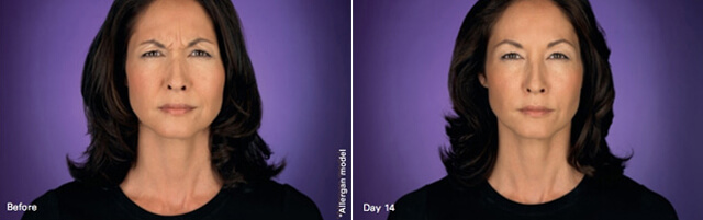 Botox before after image 2
