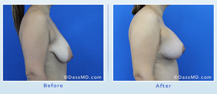 Breast Reduction case 1 before after image 3