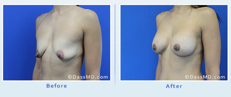 Breast Reduction case 2 before after image 2